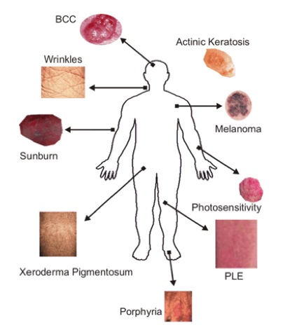 Areas of skin diseases